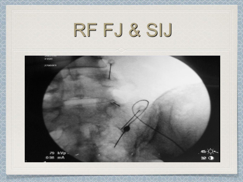 RF FJ & SIJ