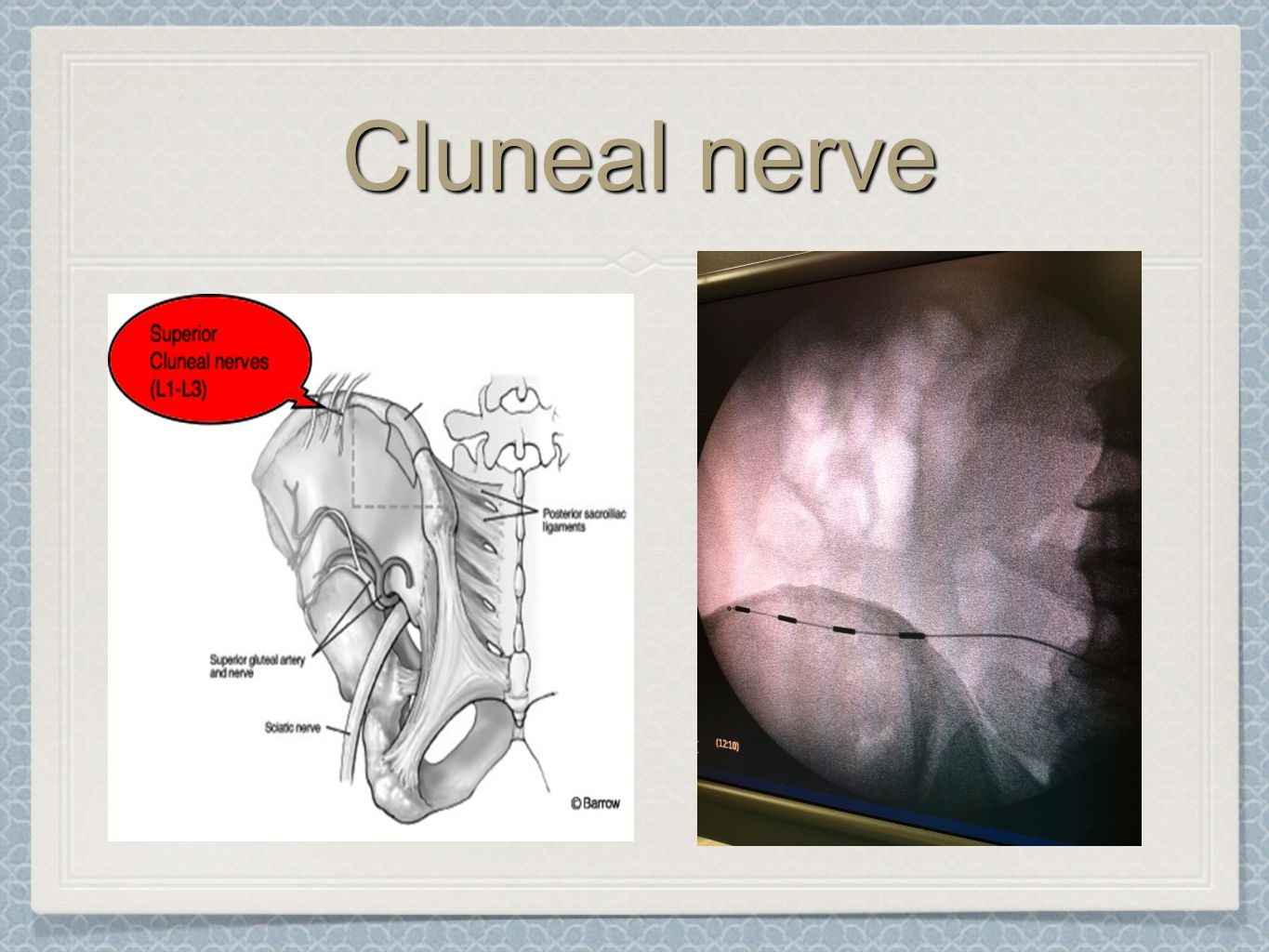 Cluneal nerve