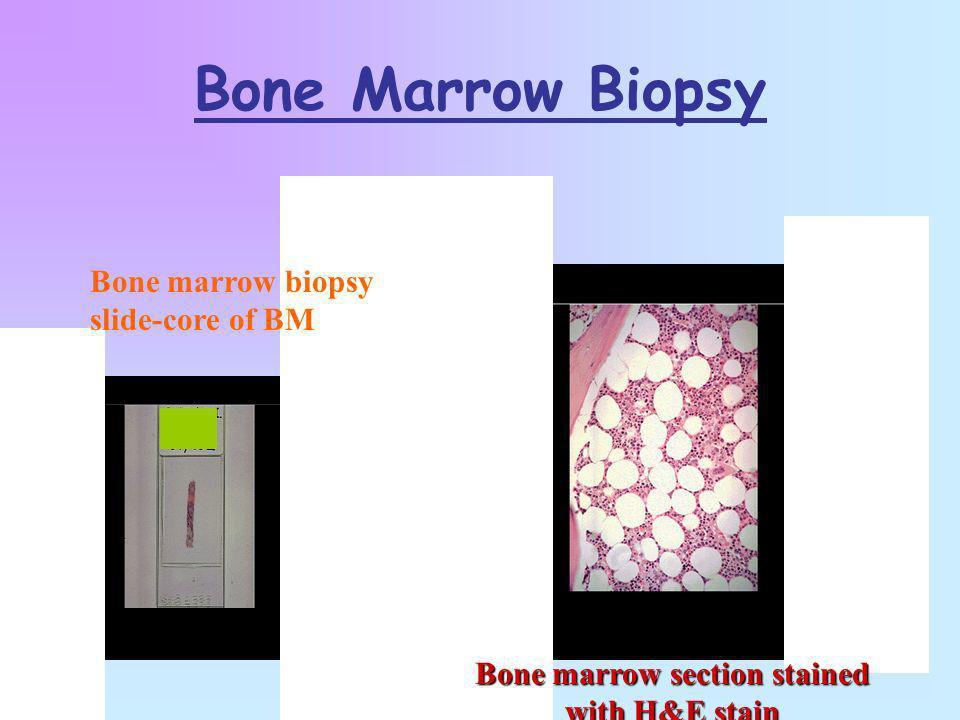 Bone marrow section stained with H&E stain