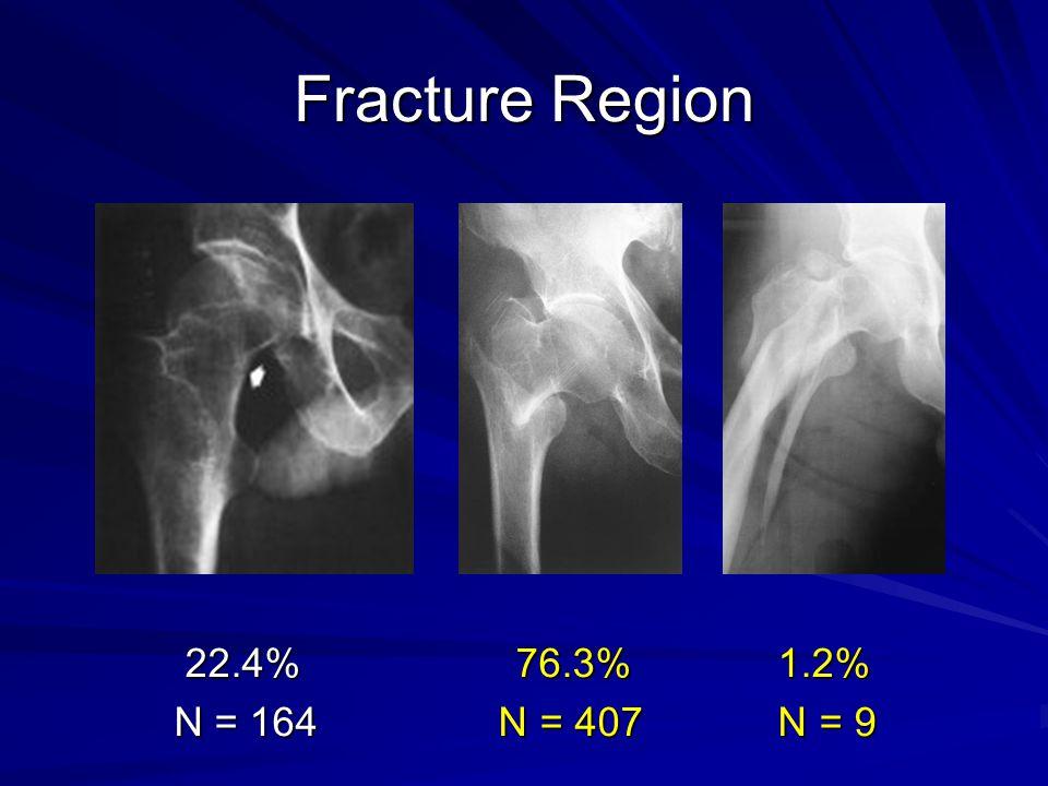 Fracture Region 22.4% 76.3% 1.2% N = 164 N = 407 N = 9