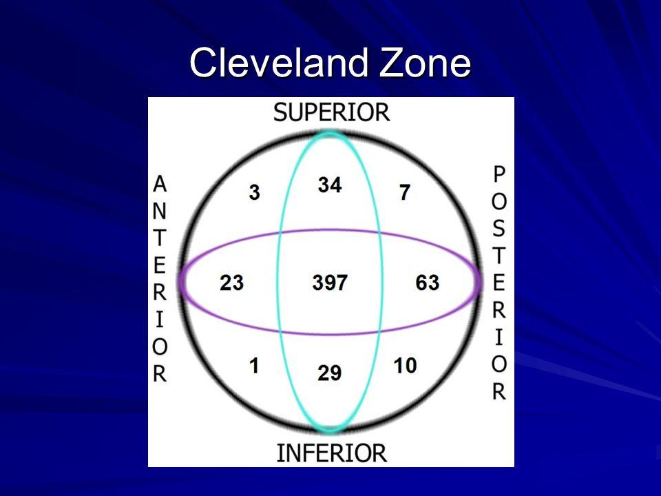 Cleveland Zone