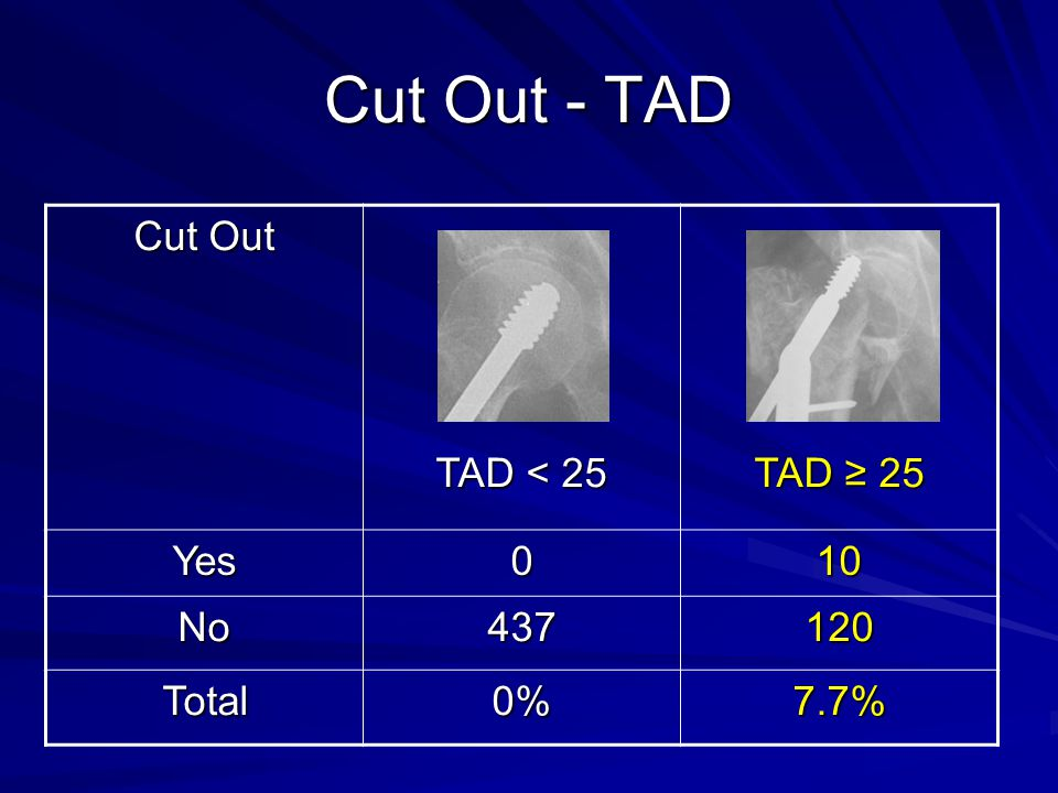 Cut Out - TAD Cut Out TAD < 25 TAD ≥ 25 Yes 10 No 437 120 Total 0%