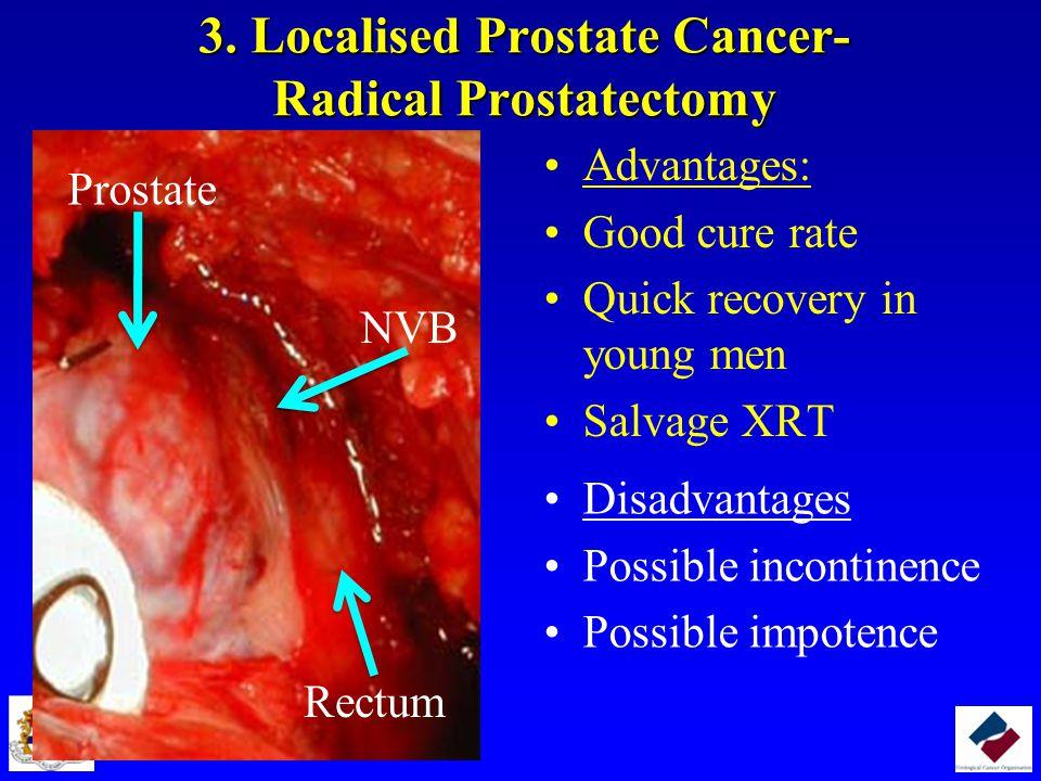 3. Localised Prostate Cancer- Radical Prostatectomy