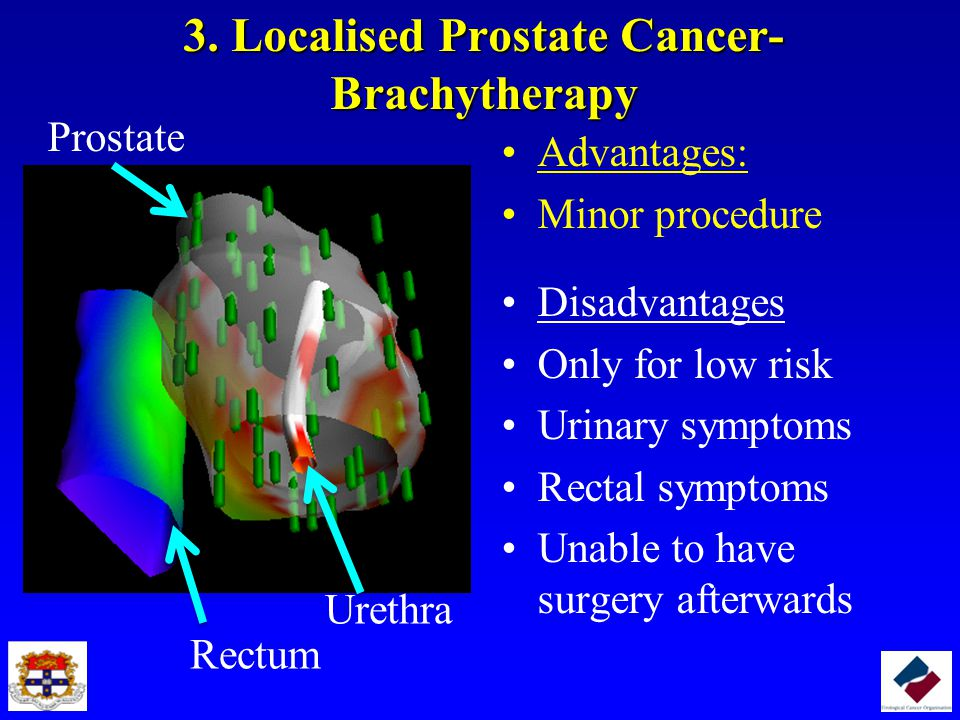 3. Localised Prostate Cancer- Brachytherapy