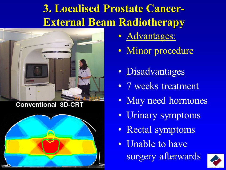 3. Localised Prostate Cancer- External Beam Radiotherapy