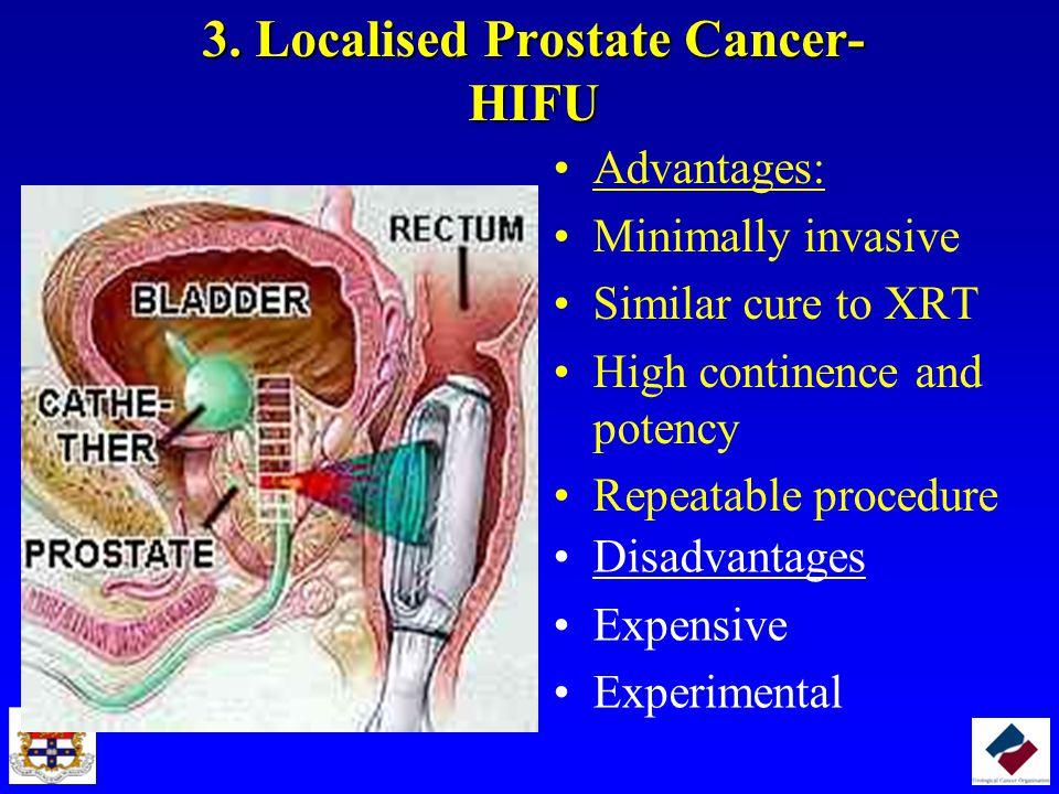 3. Localised Prostate Cancer- HIFU