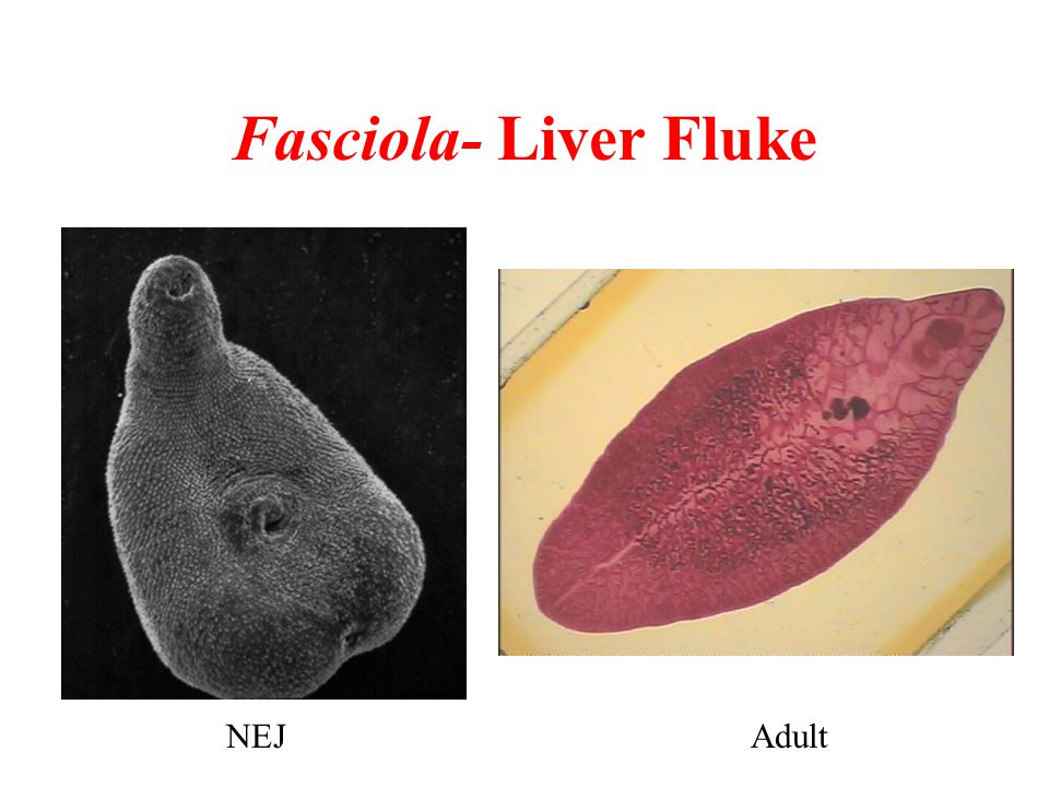 Fasciola- Liver Fluke NEJ Adult