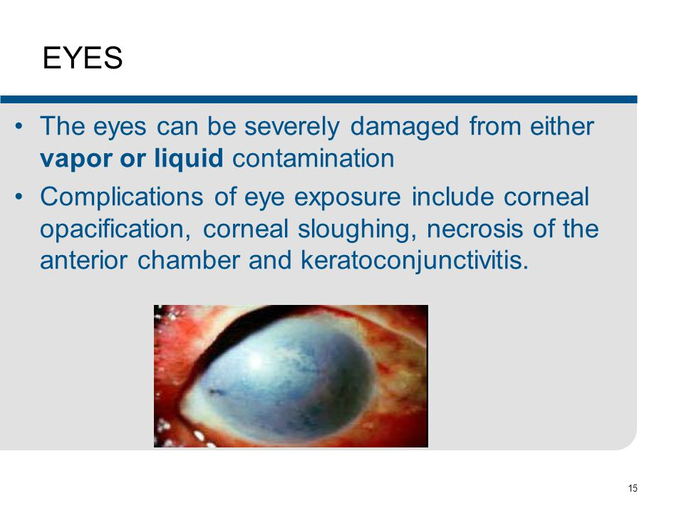 EYES The eyes can be severely damaged from either vapor or liquid contamination.