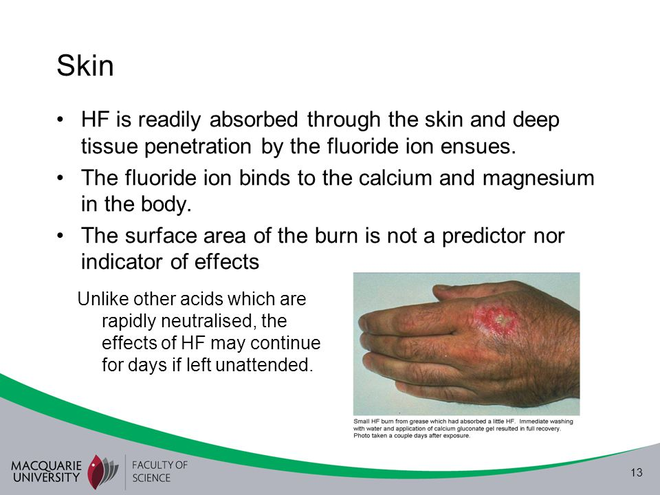 Skin HF is readily absorbed through the skin and deep tissue penetration by the fluoride ion ensues.
