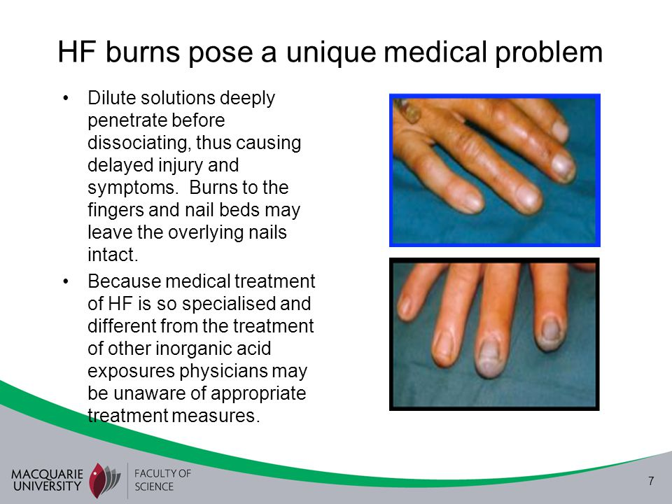 HF burns pose a unique medical problem