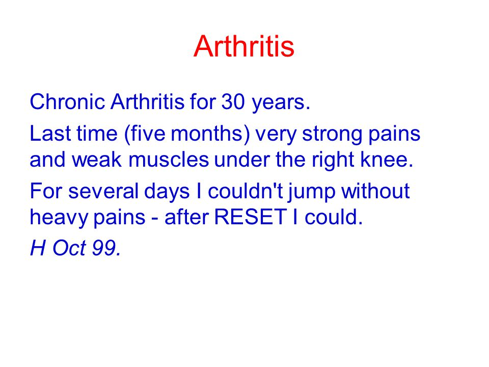 Arthritis Chronic Arthritis for 30 years.