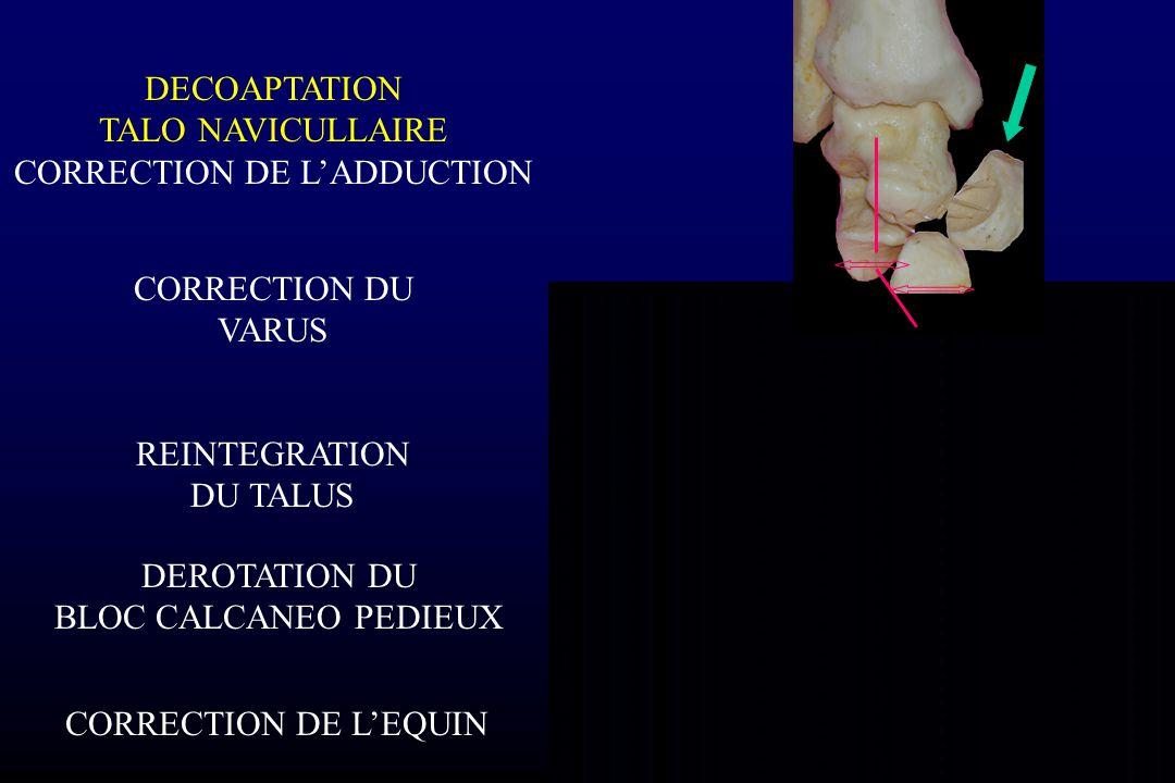 CORRECTION DE L'ADDUCTION