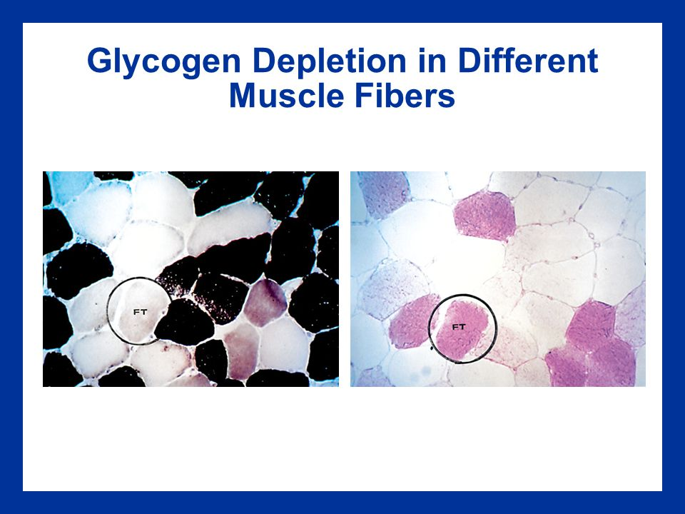 Glycogen Depletion in Different Muscle Fibers