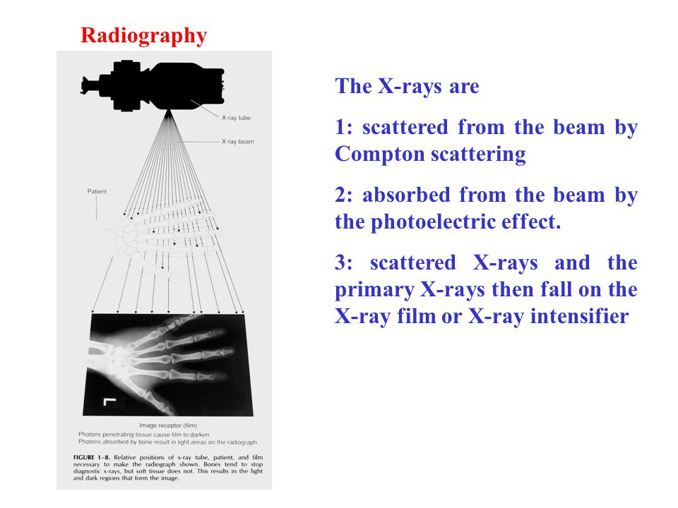 Radiography The X-rays are. 1: scattered from the beam by Compton scattering. 2: absorbed from the beam by the photoelectric effect.