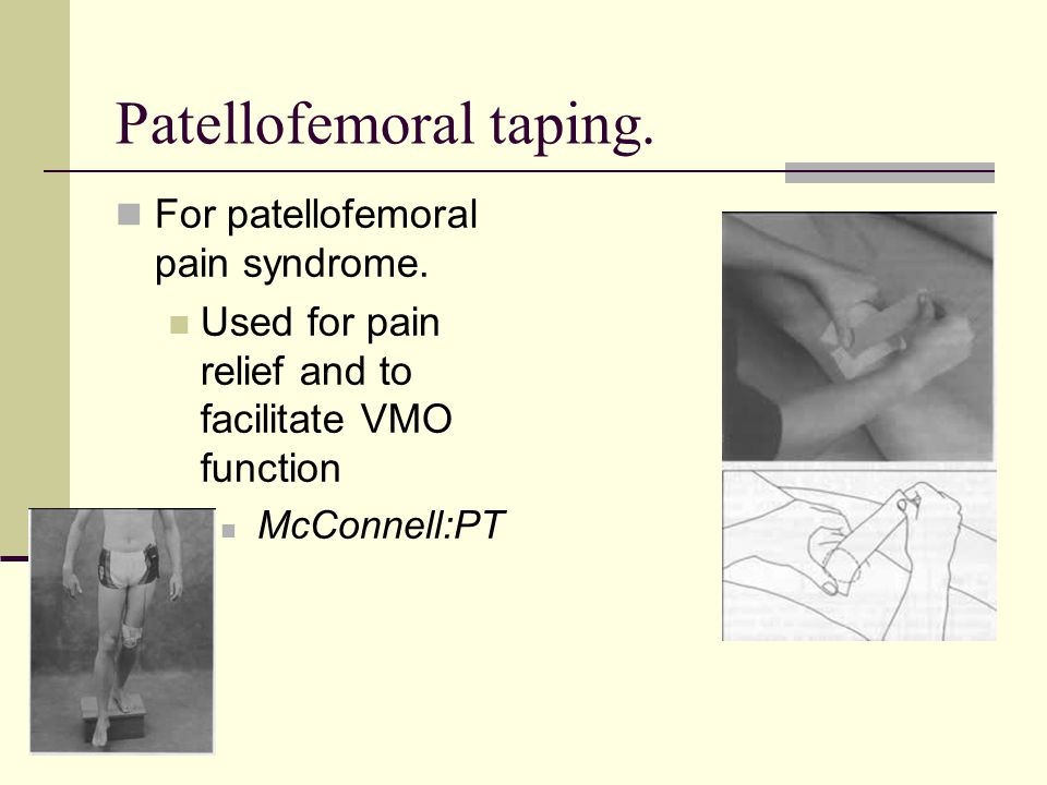 Patellofemoral taping.