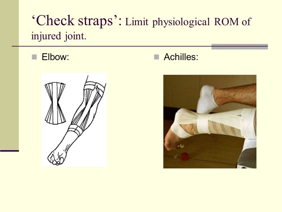 'Check straps': Limit physiological ROM of injured joint.
