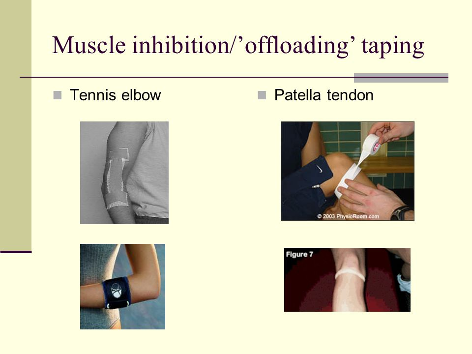 Muscle inhibition/'offloading' taping