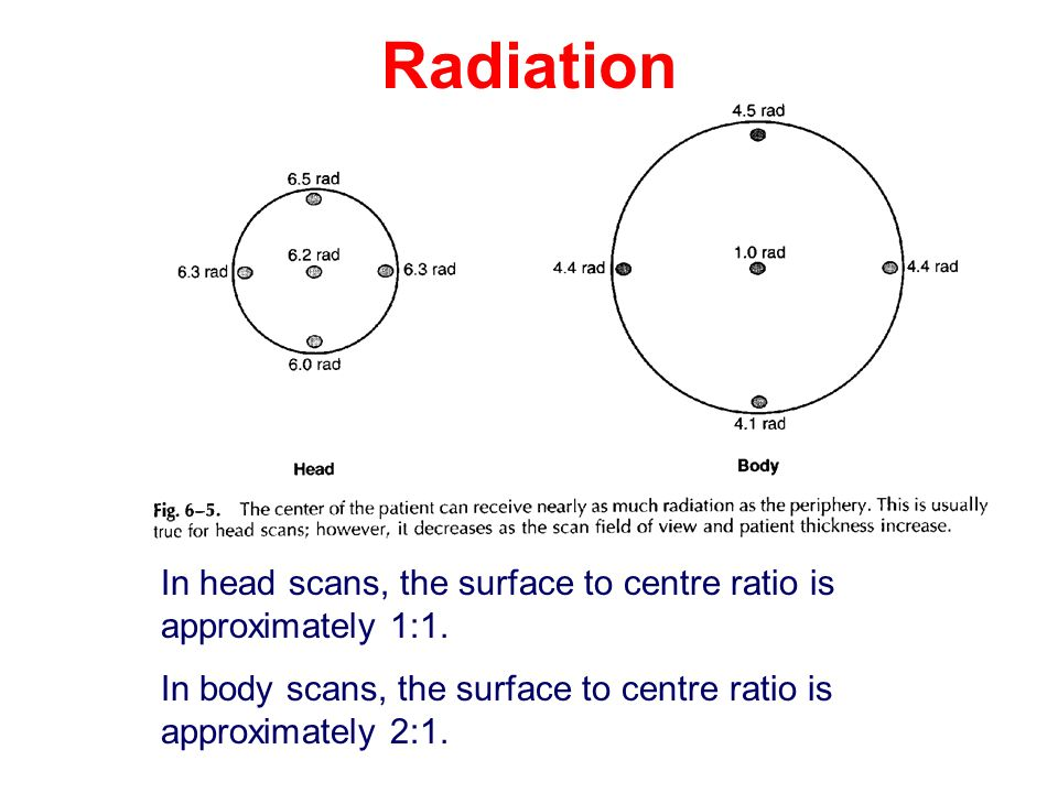Radiation In head scans, the surface to centre ratio is approximately 1:1.