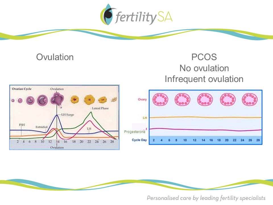 Ovulation PCOS No ovulation Infrequent ovulation Progesterone