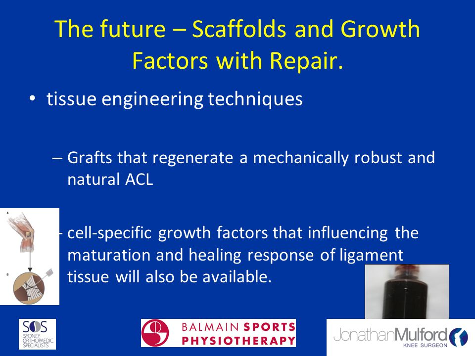 The future – Scaffolds and Growth Factors with Repair.
