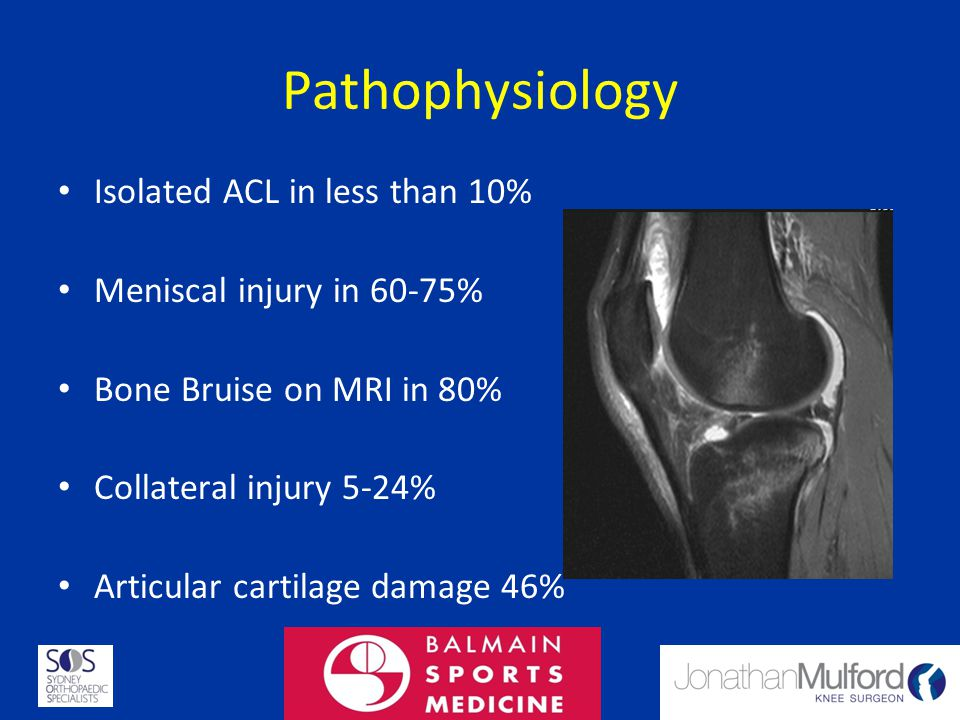 Pathophysiology Isolated ACL in less than 10%