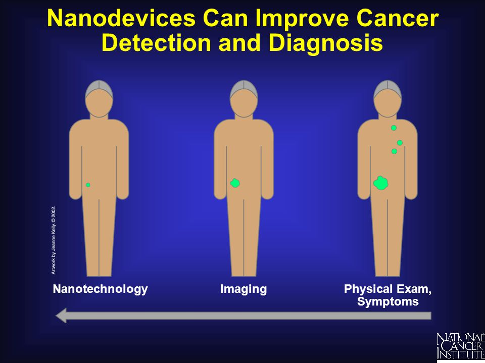Nanodevices Can Improve Cancer Detection and Diagnosis