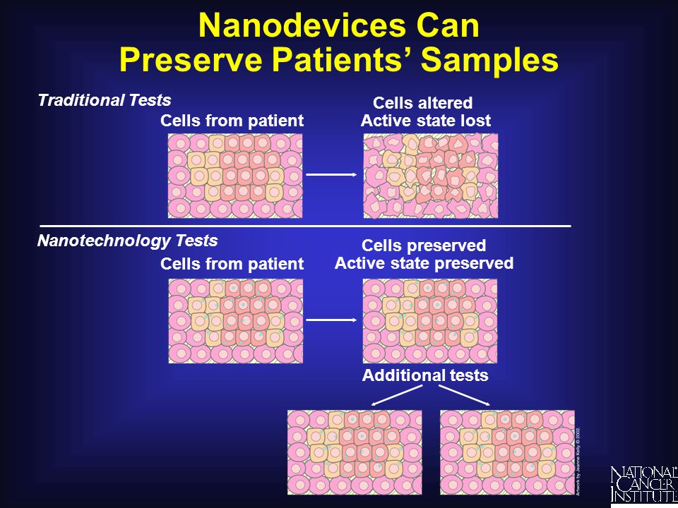 Nanodevices Can Preserve Patients' Samples