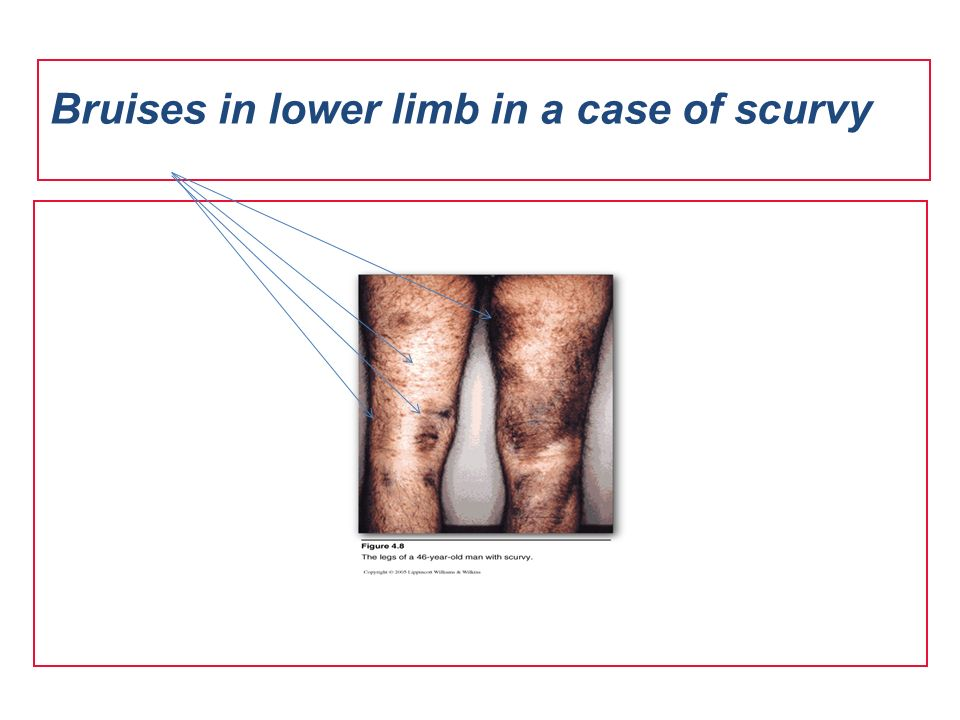 Bruises in lower limb in a case of scurvy