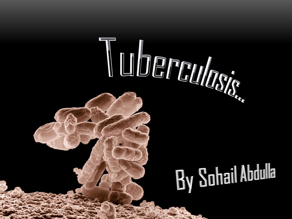 Tuberculosis… By Sohail Abdulla