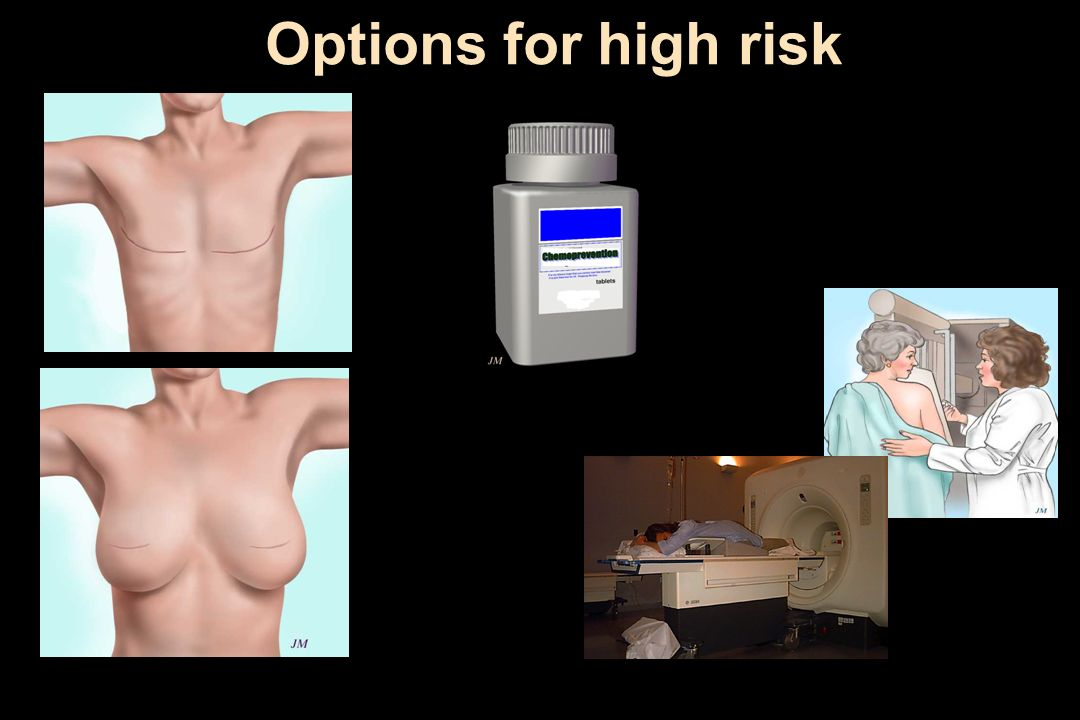 Options for high risk