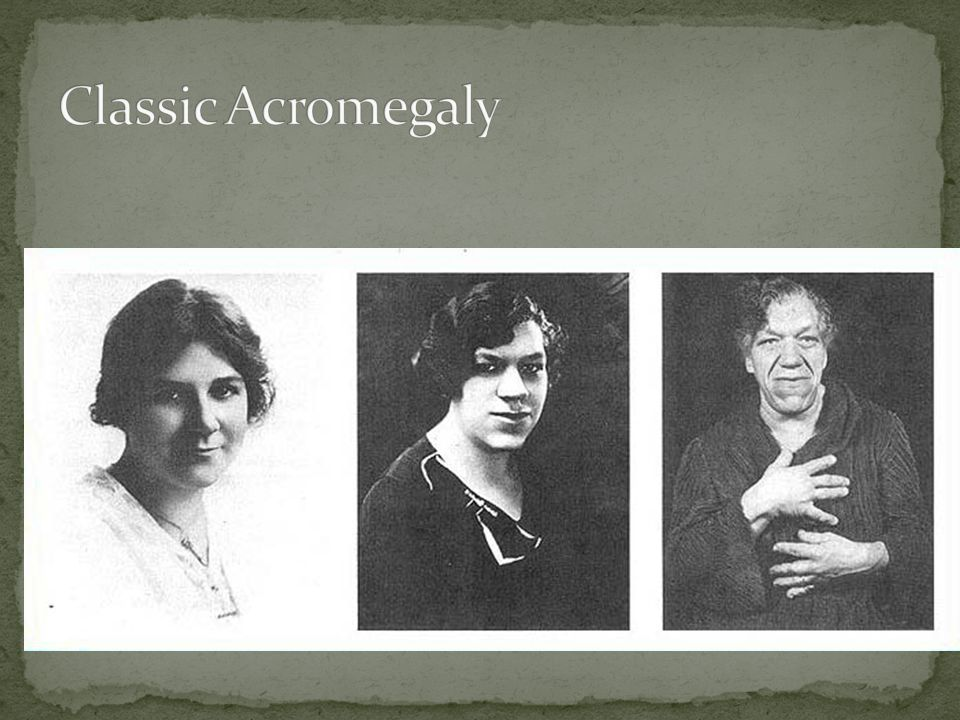 Classic Acromegaly