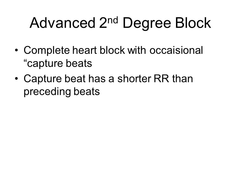 Advanced 2nd Degree Block