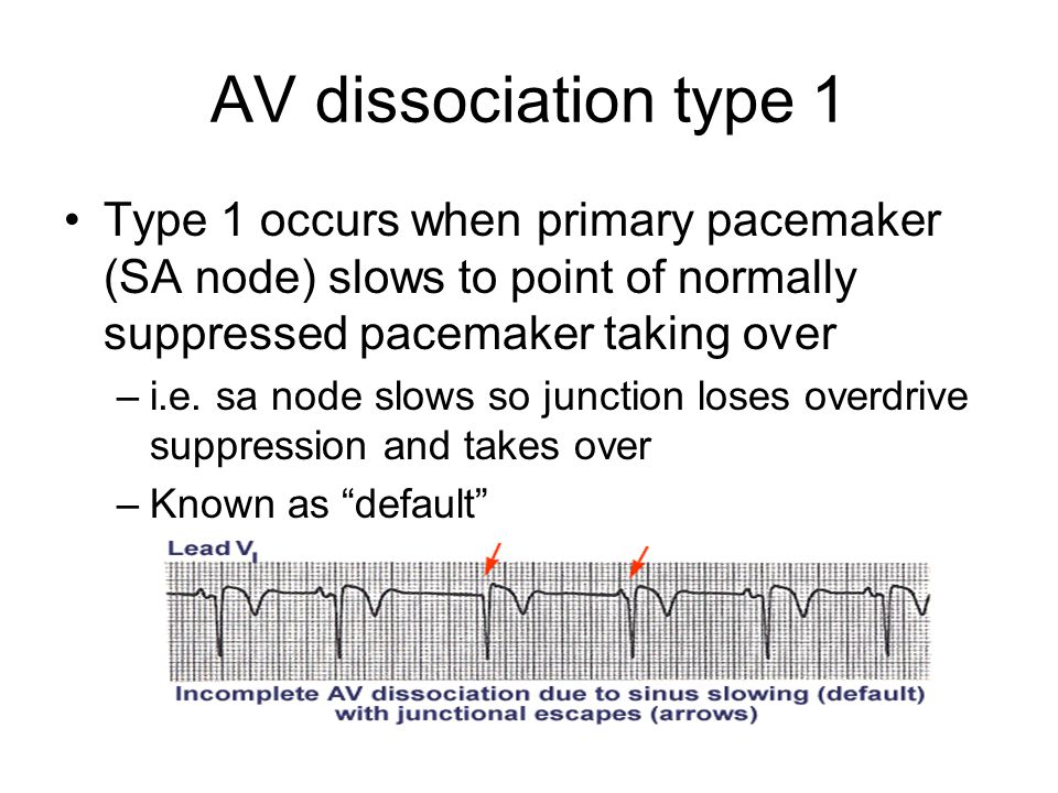 AV dissociation type 1 Type 1 occurs when primary pacemaker (SA node) slows to point of normally suppressed pacemaker taking over.