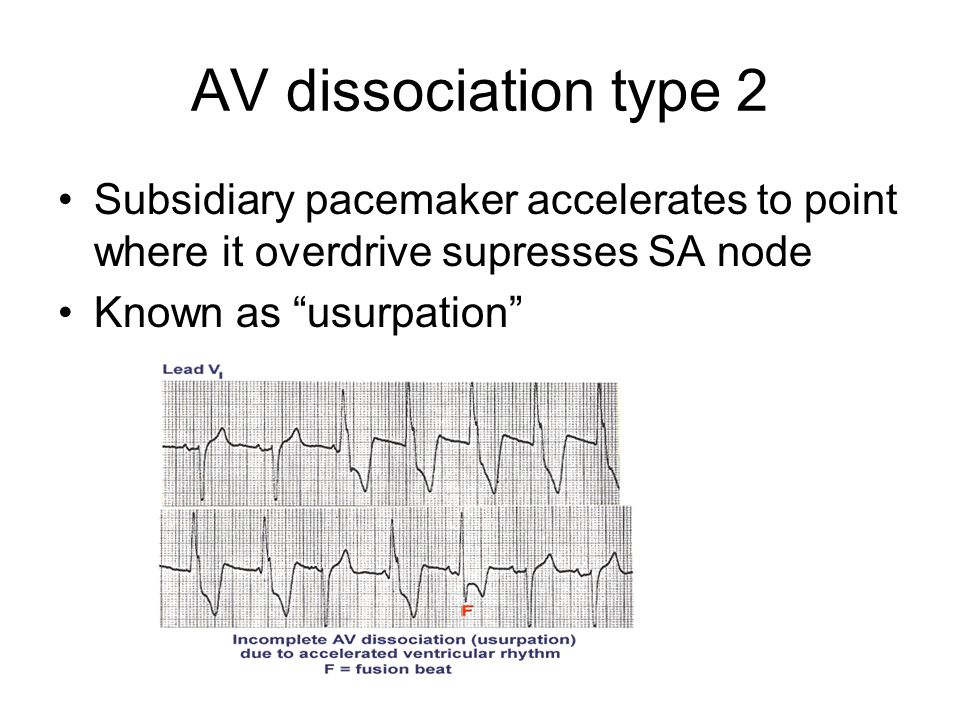 AV dissociation type 2 Subsidiary pacemaker accelerates to point where it overdrive supresses SA node.