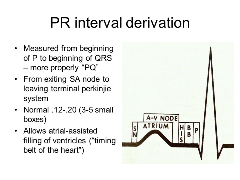 PR interval derivation