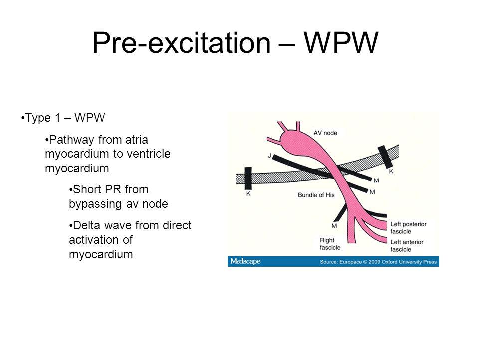 Pre-excitation – WPW Type 1 – WPW