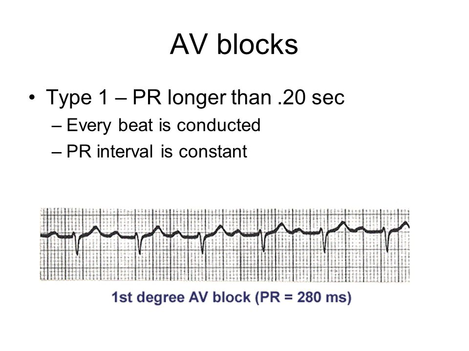 AV blocks Type 1 – PR longer than .20 sec Every beat is conducted