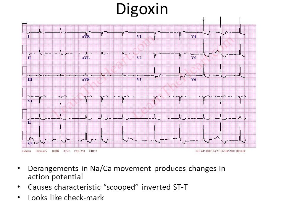 Digoxin Derangements in Na/Ca movement produces changes in action potential. Causes characteristic scooped inverted ST-T.