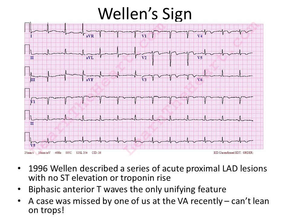 Wellen's Sign 1996 Wellen described a series of acute proximal LAD lesions with no ST elevation or troponin rise.