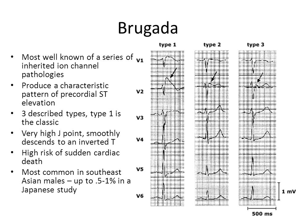 Brugada Most well known of a series of inherited ion channel pathologies. Produce a characteristic pattern of precordial ST elevation.