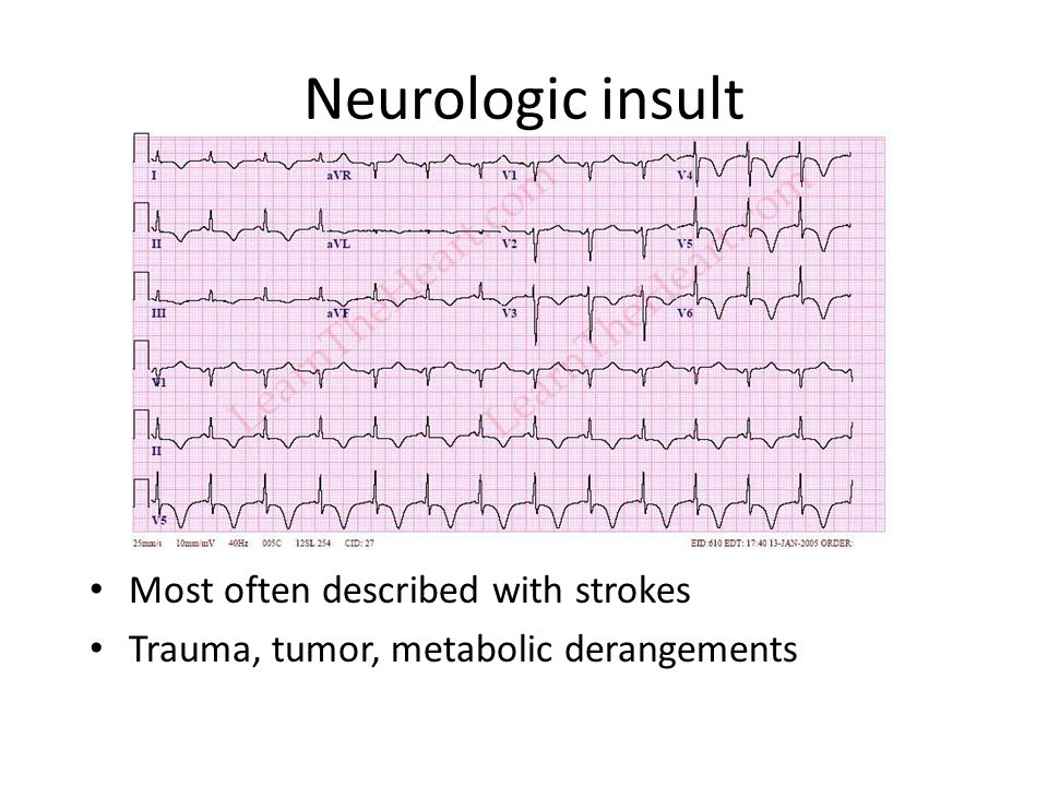 Neurologic insult Most often described with strokes