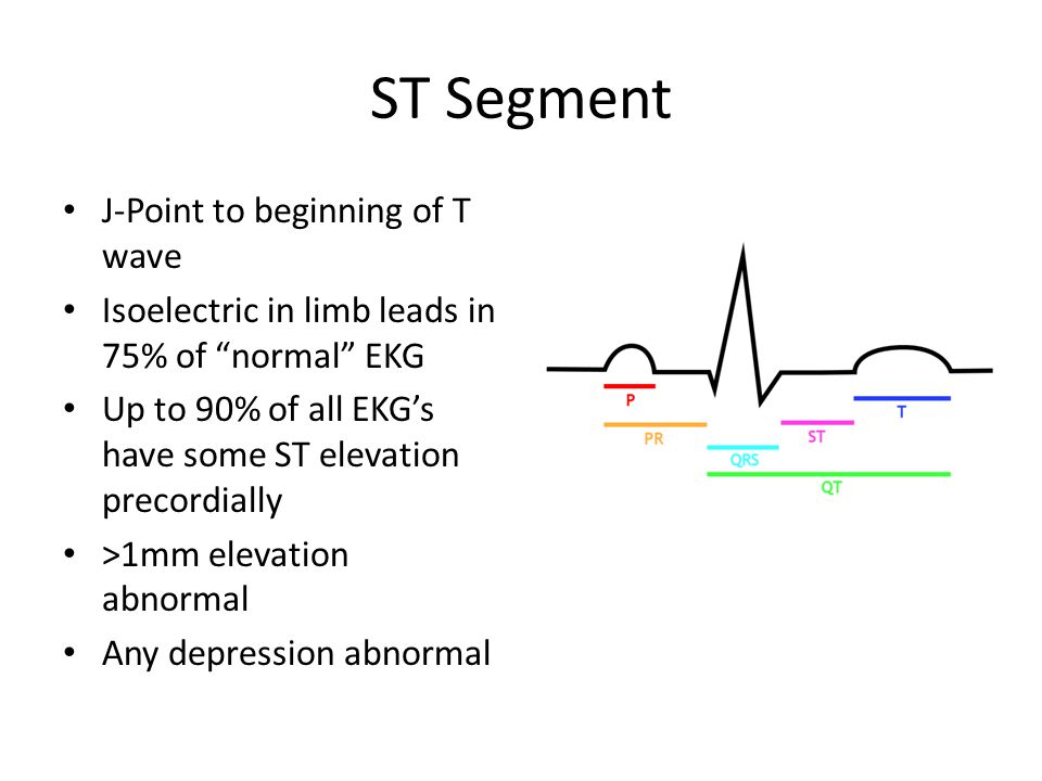 ST Segment J-Point to beginning of T wave