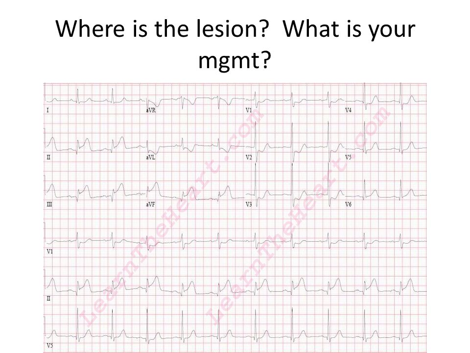 Where is the lesion What is your mgmt