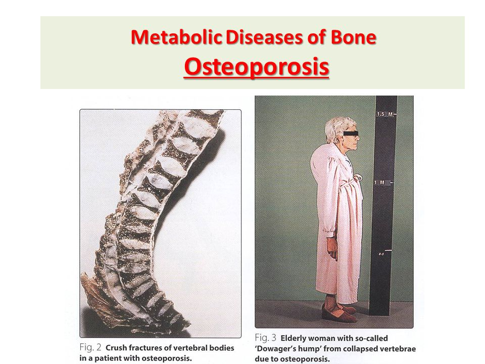 Metabolic Diseases of Bone Osteoporosis