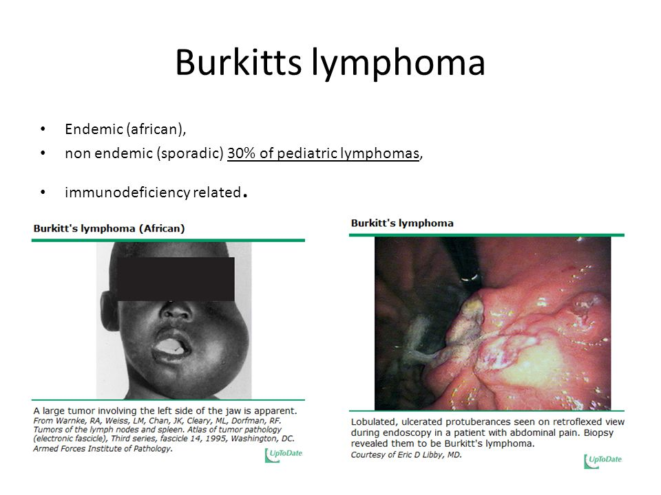 Burkitts lymphoma Endemic (african),