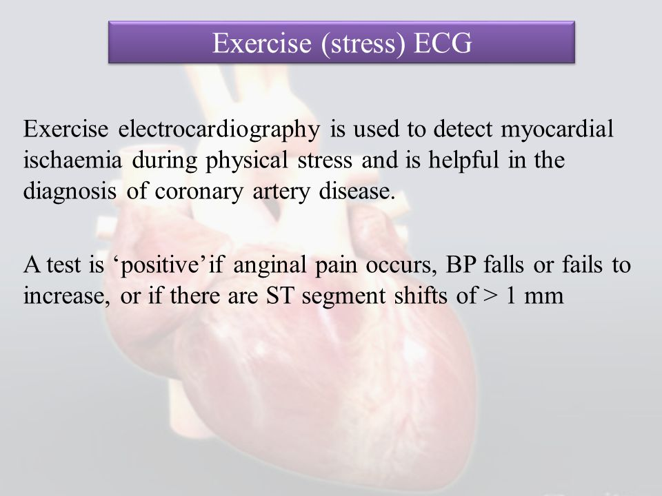Exercise (stress) ECG