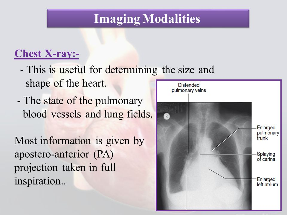 Imaging Modalities Chest X-ray:- - This is useful for determining the size and shape of the heart.