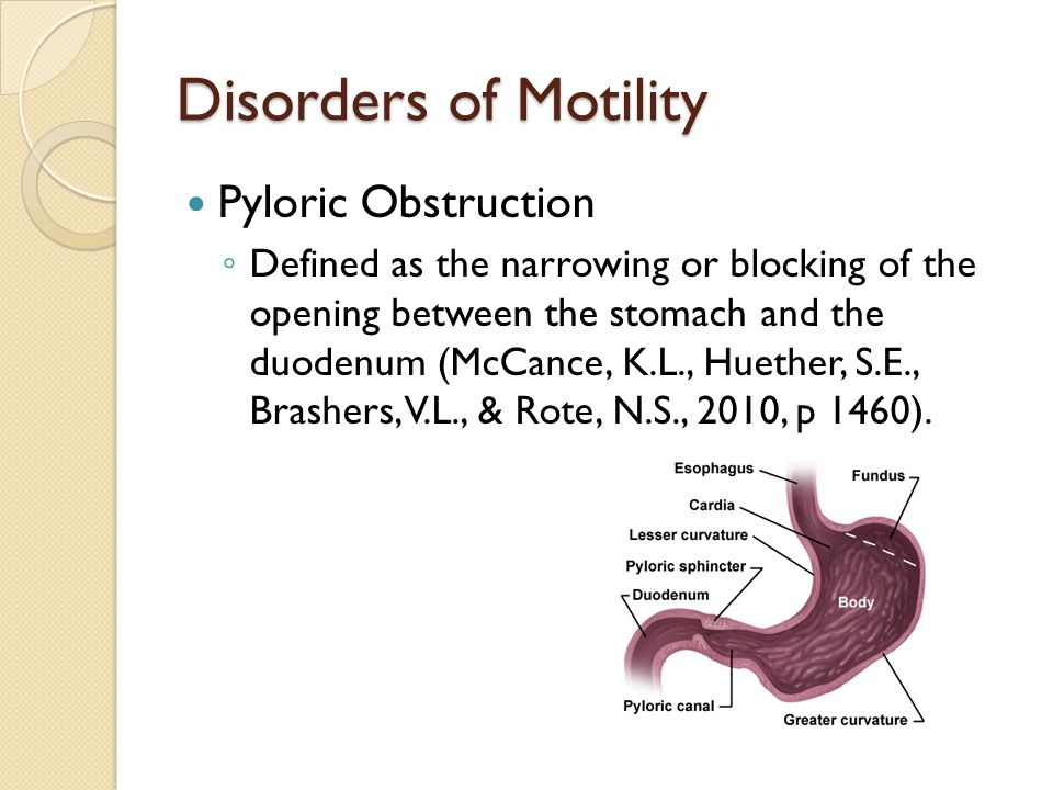 Disorders of Motility Pyloric Obstruction
