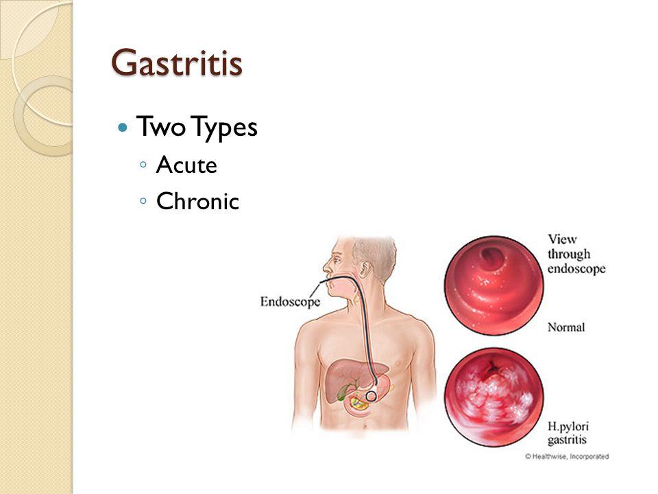 Gastritis Two Types Acute Chronic