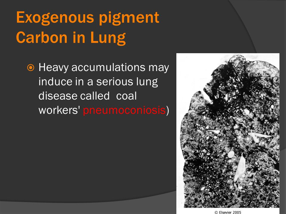 Exogenous pigment Carbon in Lung